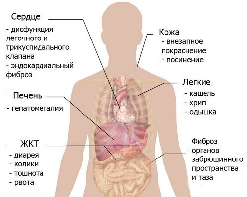 Карциноидный синдром — симптомы и лечение