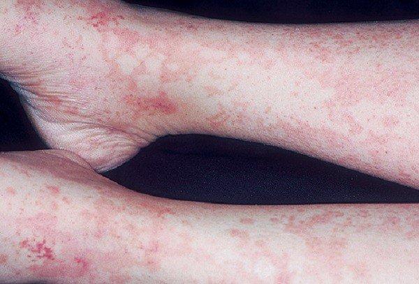 Сывороточная болезнь — симптомы и лечение