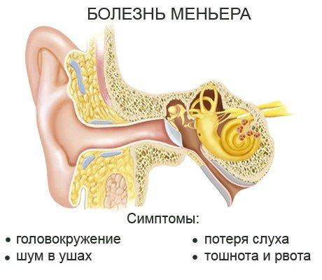 Болезнь Меньера — симптомы и лечение