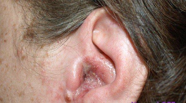Мезотимпанит — симптомы и лечение
