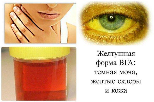 Гепатит А болезнь Боткина — симптомы и лечение