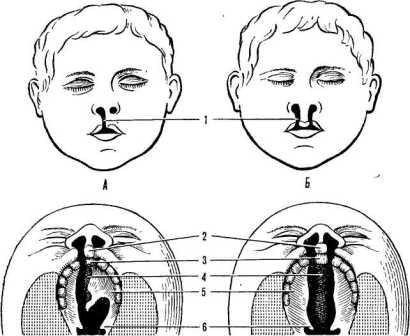 Ринолалия — симптомы и лечение, фото и видео
