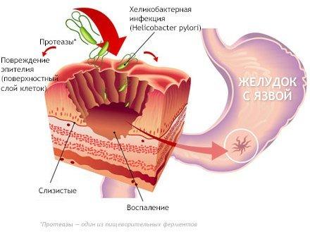 Прободная язва желудка — симптомы и лечение