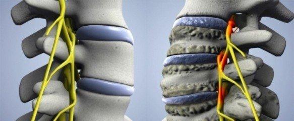 Унковертебральный артроз — симптомы и лечение