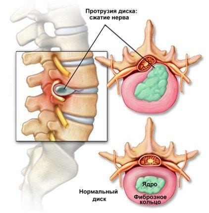 Протрузия поясничного отдела позвоночника — симптомы и лечение