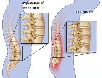 Спондилоартрит — симптомы и лечение