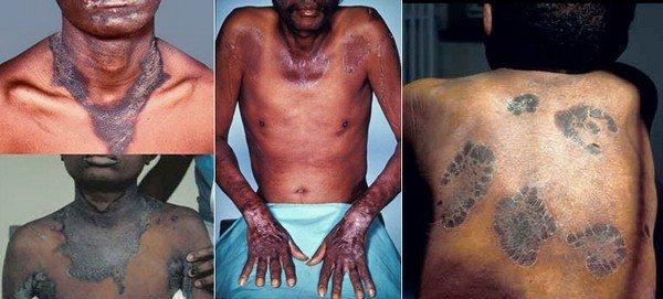 Пеллагра — симптомы и лечение, фото и видео