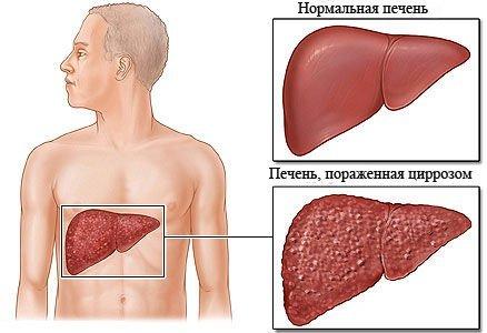 Аутоиммунный гепатит — симптомы и лечение