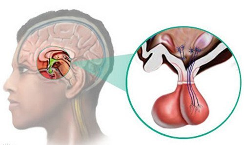 Пролактинома — симптомы и лечение