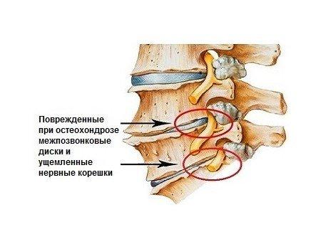 Дорсалгия — симптомы и лечение