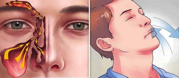 Хронический риносинусит — симптомы и лечение