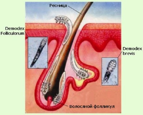 Демодекс (демодекоз): симптомы и лечение
