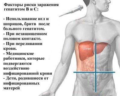 Гепатит В — симптомы и лечение