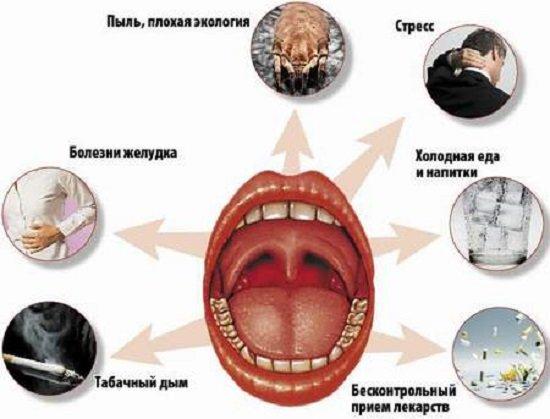 Фарингит — симптомы и лечение