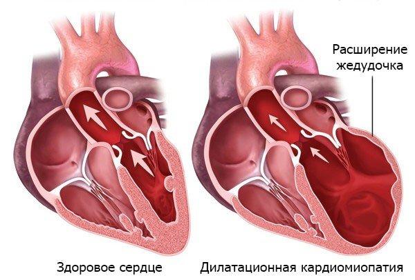 Дилатационная кардиомиопатия — симптомы и лечение