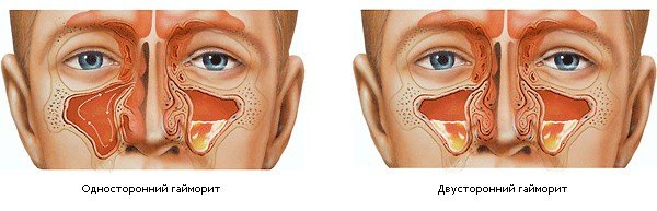 Гайморит — симптомы и лечение