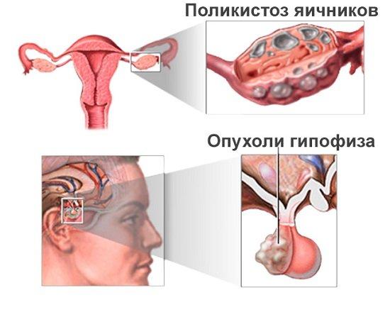 сколько сохраняется менструальная функция при преждевременном истощении яичников