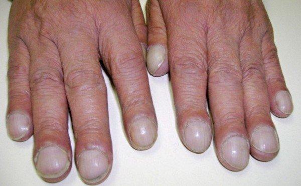 Гиперостоз — симптомы и лечение
