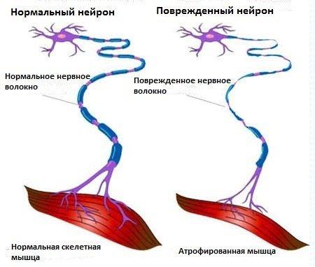 Боковой амиотрофический склероз — симптомы и лечение