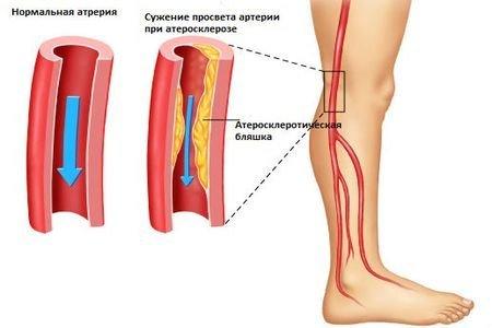 Облитерирующий атеросклероз — симптомы и лечение