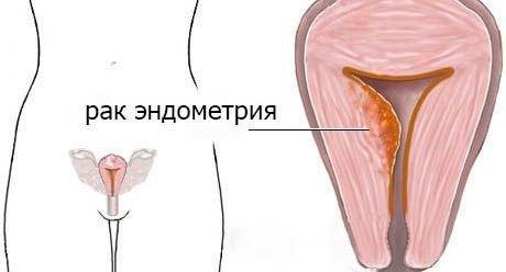 Рак эндометрия — симптомы и лечение
