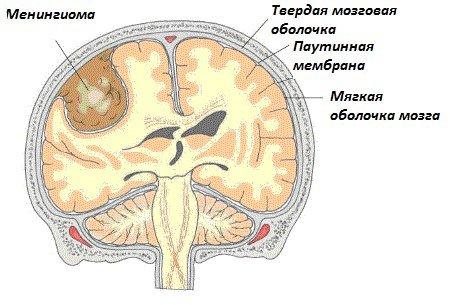 Менингиома — симптомы и лечение