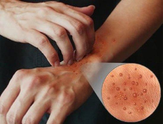 Дерматит — симптомы и лечение