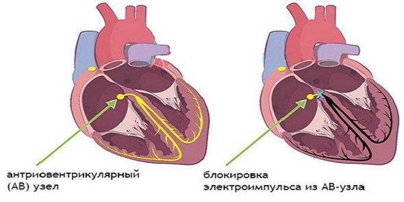 Блокада сердца — симптомы и лечение