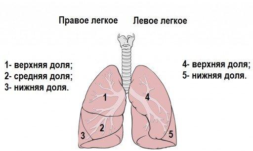 Долевая пневмония — симптомы и лечение