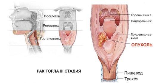 Рак горла гортани — симптомы и лечение
