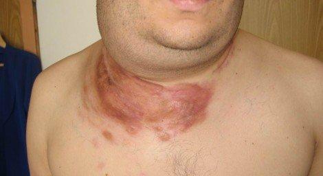 Лимфома Беркитта — симптомы и лечение