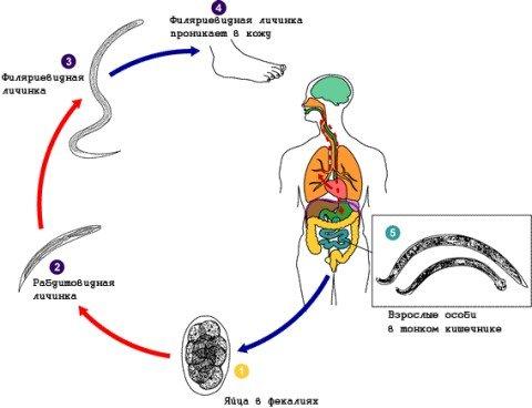 Стронгилоидоз — симптомы и лечение