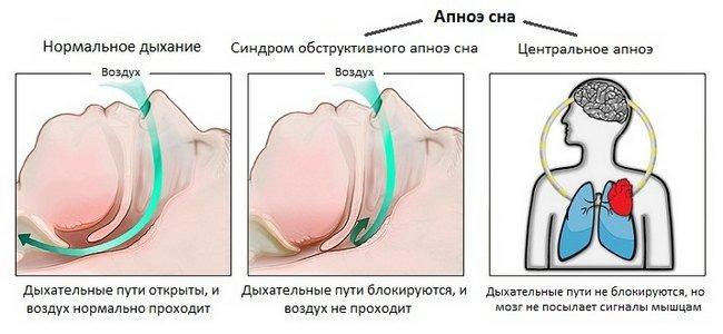 Апноэ — симптомы и лечение