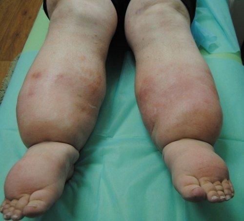 Лимфостаз нижних конечностей — симптомы и лечение