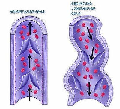 Варикоз малого таза — симптомы и лечение