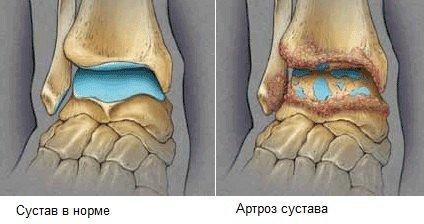 Артроз голеностопного сустава — симптомы и лечение