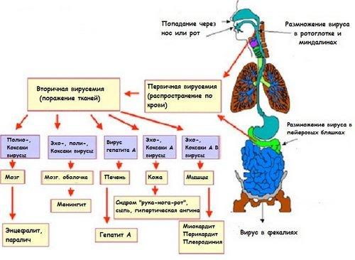 Энтеровирусная инфекция — симптомы и лечение