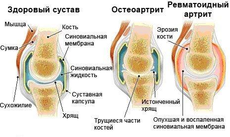 Артрит плечевого сустава — симптомы и лечение