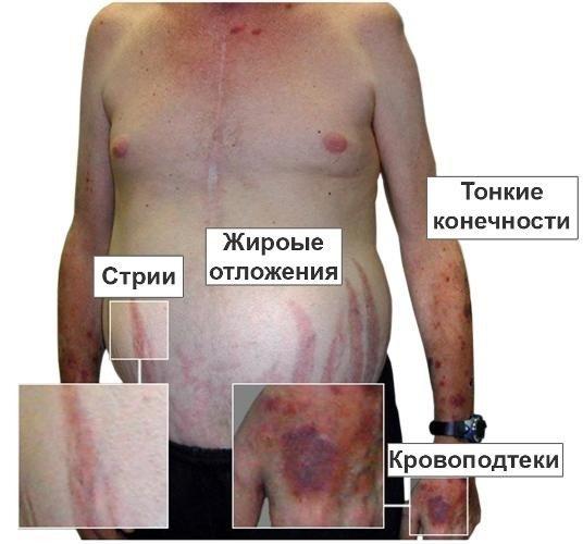 Синдром Кушинга — симптомы и лечение