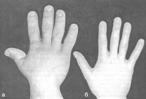 Гигантизм — симптомы и лечение