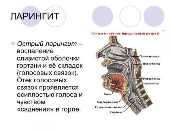 Ларингит – симптомы и лечение, фото и видео.
