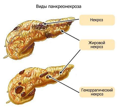Панкреонекроз — симптомы и лечение