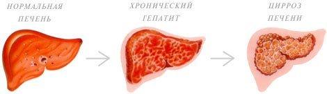 Хронический гепатит — симптомы и лечение