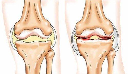 Артропатия — симптомы и лечение