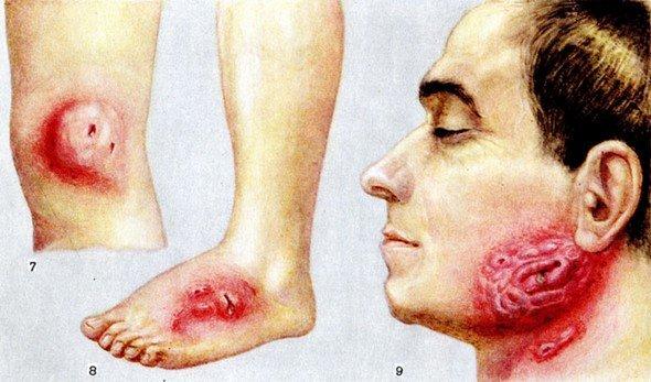Актиномикоз — симптомы и лечение