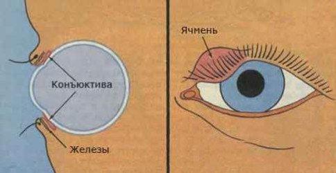 Ячмень на глазу — симптомы и лечение