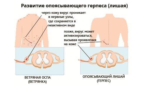 Опоясывающий герпес — симптомы и лечение