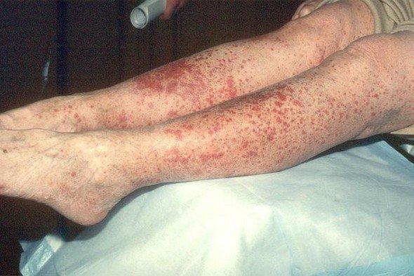 Аллергический васкулит — симптомы и лечение