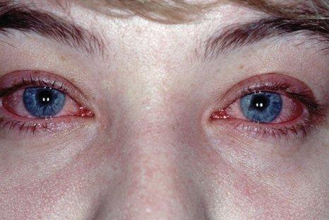 Аллергический конъюнктивит — симптомы и лечение