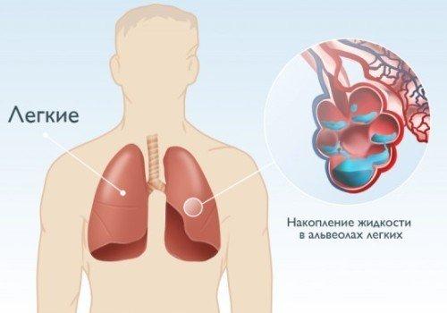 Отек легких — симптомы и лечение